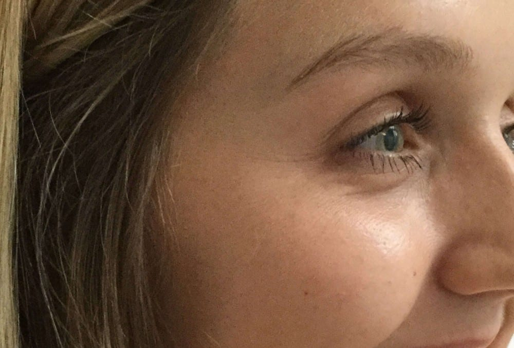 Treatments | Winchester Beauty Aesthetics | D'Souza Aesthetics